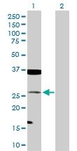 H00006876-D01P - Transgelin (TAGLN)