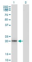 H00006876-M05 - Transgelin (TAGLN)