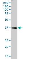 H00006888-B01P - Transaldolase (TALDO1)