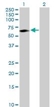 H00006947-D01P - Transcobalamin-1 (TCN1)