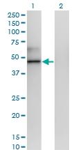 H00006947-M12 - Transcobalamin-1 (TCN1)