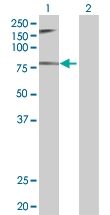 H00006949-B01 - Treacle protein / TCOF1