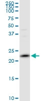 H00007001-B02P - Peroxiredoxin-2 / PRDX2