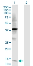 H00007032-D01P - Trefoil factor 2 / SML1