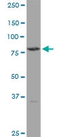 H00007047-B01P - Transglutaminase-4 (TGM4)