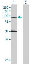 H00007051-B01 - Transglutaminase-1 (TGM1)