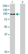 H00007051-B02P - Transglutaminase-1 (TGM1)
