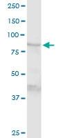 H00007051-D01P - Transglutaminase-1 (TGM1)