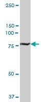 H00007052-B01P - Transglutaminase-2 (TGM2)