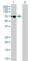 H00007052-D01P - Transglutaminase-2 (TGM2)