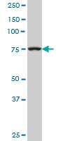 H00007052-M02 - Transglutaminase-2 (TGM2)