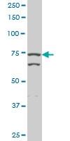H00007052-M06 - Transglutaminase-2 (TGM2)