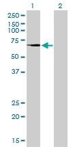 H00007052-M10 - Transglutaminase-2 (TGM2)