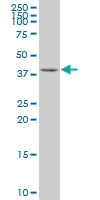 H00007111-A01 - Tropomodulin-1 (TMOD1)