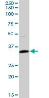 H00007138-B01P - Skeletal muscle Troponin T
