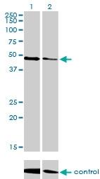H00007157-M04 - TP53 / p53