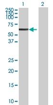 H00007162-B01P - Trophoblast glycoprotein (TPBG)