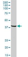 H00007162-D01P - Trophoblast glycoprotein (TPBG)