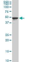 H00007162-M09 - Trophoblast glycoprotein (TPBG)