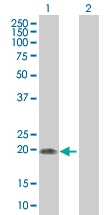 H00007164-B01 - Tumor protein D53 (TPD52L1)