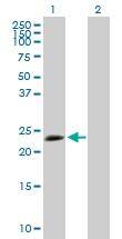H00007164-B02P - Tumor protein D53 (TPD52L1)