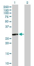 H00007165-B01P - Tumor protein D54 (TPD52L2)