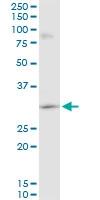 H00007170-A01 - Tropomyosin-3 (TPM3)