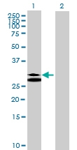 H00007177-B01 - Tryptase beta-1 (TPSAB1)