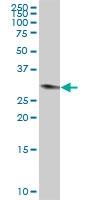 H00007177-B02P - Tryptase beta-1 (TPSAB1)