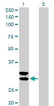 H00007177-D01P - Tryptase beta-1 (TPSAB1)