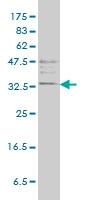 H00007177-M01 - Tryptase beta-1 (TPSAB1)