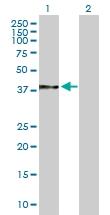 H00007184-B01 - Endoplasmin / HSP90B1 / TRA1