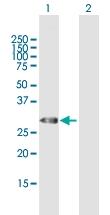 H00007200-B01P - Thyrotropin-releasing hormone (TRH)