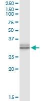 H00007200-D01 - Thyrotropin-releasing hormone (TRH)