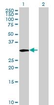 H00007263-B01 - Thiosulfate sulfurtransferase (TST)