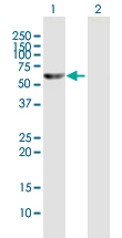 H00007296-B01P - Thioredoxin reductase 1 / TXNRD1