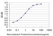 H00007348-M02 - Uroplakin-1b (UPK1B)
