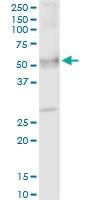 H00007369-D01P - Uromodulin (UMOD)