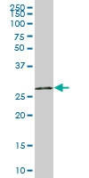H00007374-B01P - Uracil-DNA glycosylase (UNG)