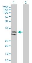 H00007374-D01P - Uracil-DNA glycosylase (UNG)