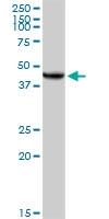 H00007385-D01P - UQCRC2 (Complex III subunit Core 2)