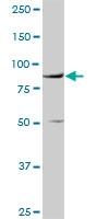 H00007412-D01P - CD106 / VCAM1