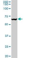 H00007415-M03 - TER ATPase / VCP