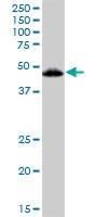 H00007421-B01P - Vitamin D3 receptor / NR1I1