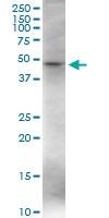 H00007421-D01 - Vitamin D3 receptor / NR1I1