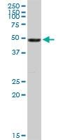 H00007431-D01P - Vimentin