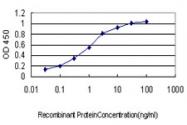 H00007442-M01 - TRPV1 / Vanilloid receptor 1