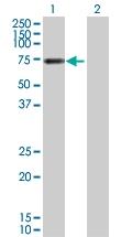 H00007448-D01P - Vitronectin