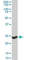 H00007532-M02 - 14-3-3 protein gamma
