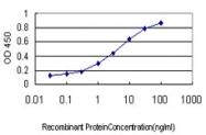 H00007536-M01 - Splicing factor 1 (SF1)